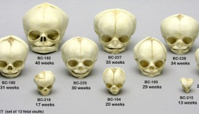 fetal_skull_set_of_12_ages_13_to_40